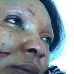 Tess Wigwe is assaulted by her husband, Dr. Chijioke Wilcox Wigwe, Nigerian Ambassador to Kenya
